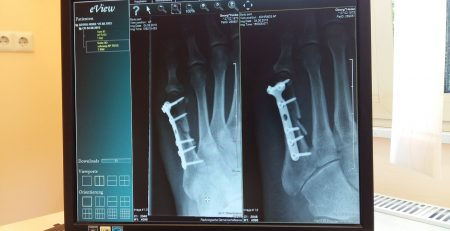 First Aid for Bone Fractures Caused by Mississippi Car Accidents