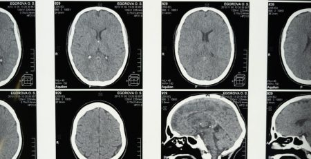 New Technology Diagnoses TBIs Faster