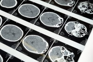 Types of Non-Traumatic Brain Injuries Caused by Negligence