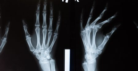 Unable to Work After a Car Accident Caused Your Hand Injury?